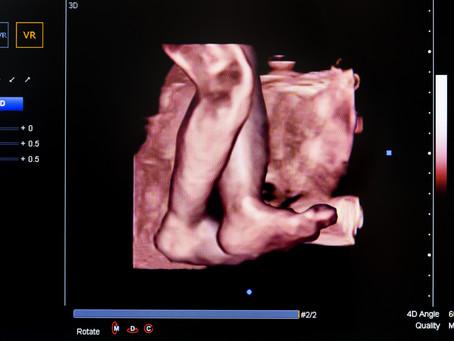 Ultrasound Secrets Revealed