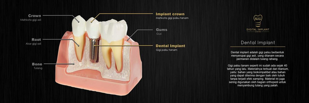 dokter gigi implant jakarta, implant jak
