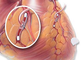 Agulha intravascular AnastaFlo