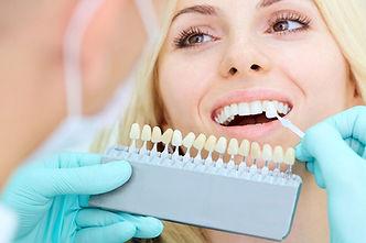 veneers-rominger-family-dental-1024x683.jpg