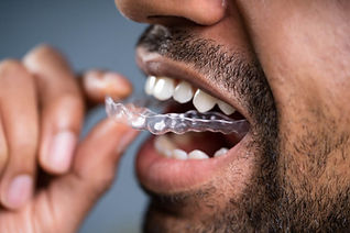 Clear-Aligners-Gallery.jpeg