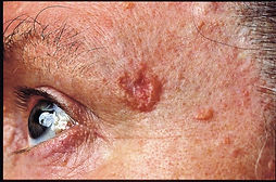 Skin Cancer.jpg