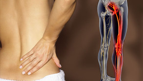 Can Chiropractic Care Help With Sciatica?
