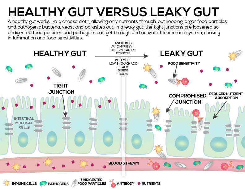 image shows the difference between a healthy gut and a leaky gut