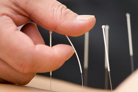 bigstock_acupuncture_12558167.jpg