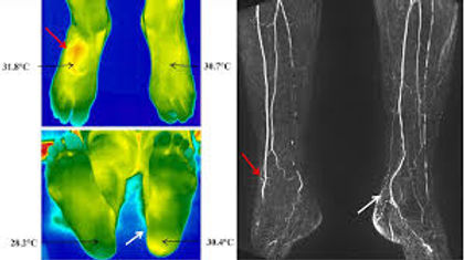 thermography foot.jfif
