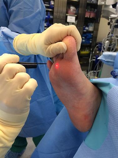 Laser wart surgery