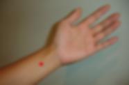 Der Begriff Passtor bei der Handgelenksfalte beschreibt die anatomisch eingeengte Lage zwischen zwei Sehnen so wie in einer Passenge zusammenlaufende Wege zusammengedrängt werden.