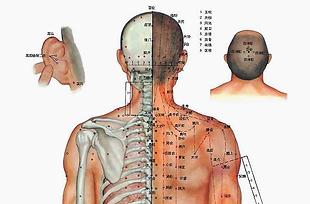 Akupunktur-und-Tools-Galerie-Var.2.1.png