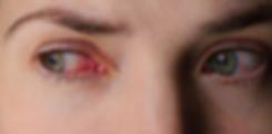 Das Glaukom bzw. Grüner Star bezeichnet eine Reihe von Augenerkrankungen, die unbehandelt alle zu einem allmählichen Absterben der Fasern des Sehnervs und schliesslich zur Zerstörung des Sehnervs mit nachfolgender Blindheit führen.