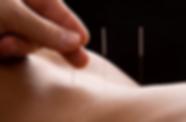 Besonders gut geeignet ist die Akupunktur bei Schmerzen im Bewegungsapparat, wie Lendenschmerzen oder Beinschmerzen, sowie bei Migräne, Asthma, Menstruationsbeschwerden, Depression, Verdauungsbeschwerden, Augenerkrankungen, Hautbeschwerden, Tinnitus, Wechseljahresbeschwerden und Unfruchtbarkeit.