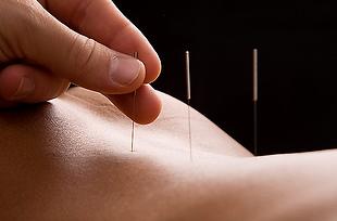 Akupunktur-und-Tools-Galerie-Var.4.1.png