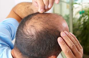 In der Regel kann zwischen drei verschiedenen Arten von Haarausfall unterschieden werden. Sie alle können Männer und Frauen gleichermassen treffen.