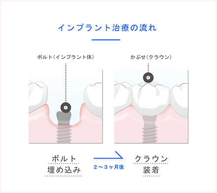 implant_ph03_150x.png