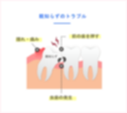 kokugeka_ph02_150x-8.png