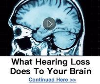 hearingloss, synapse xt,
