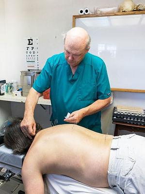 Toledo Acupuncture Session
