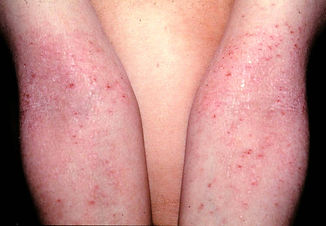 Derma Atopica.jpg