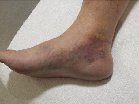 "Dermatitis por estasis venosa ¿Padeces de ""várices""?"