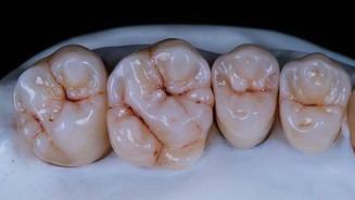 odontotecnica 3d dental project
