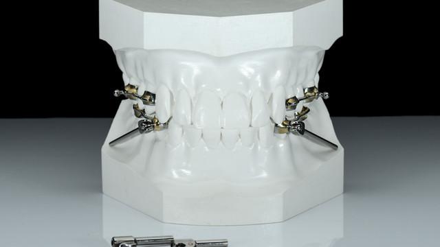 ortodonzia 3d dental project