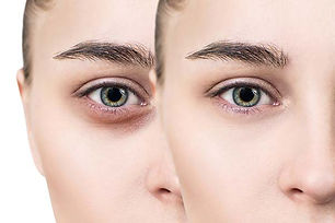 how-to-remove-dark-circles-under-the-eye