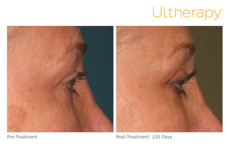 ultherapy000p033y_before120daysafter_bro