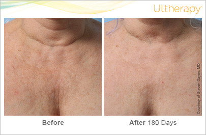 ultherapy_039gmj_beforeandafter180day_1t