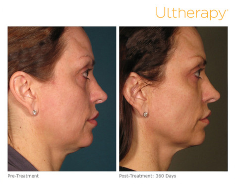 ultherapy000p015y_before360daysafter_ful