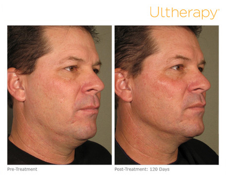 ultherapy0058d_before120daysafter_full.j