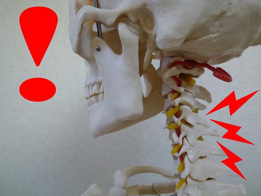 頚椎椎間板へるnヘルニアとは