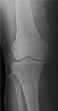 Radiografia.png