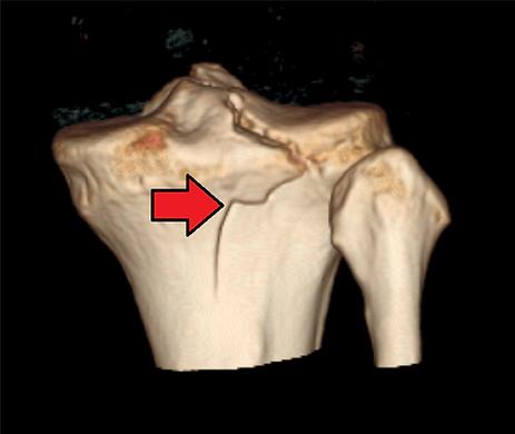 Artrite pós-traumática.png