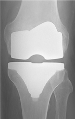 Radiografiaprotese.png