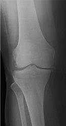 radiografiajoelho-min.png