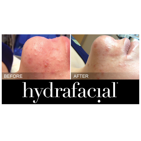 hydrafacial acne treatment Gerrards Cross