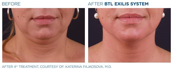 double chin skin tightening aesthetics treatment