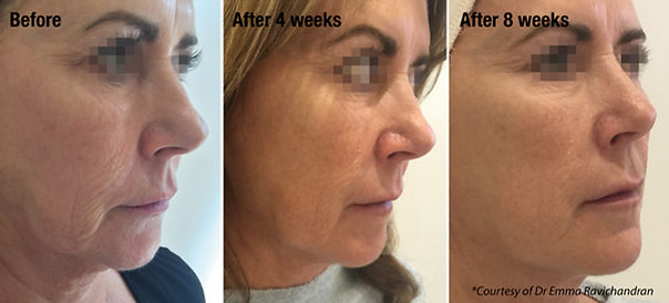 botox before and after chalfont st peter