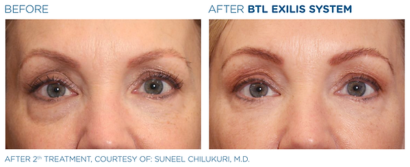 Exilis ultra under eye radiofrequency treatment Chalfomt St Peter