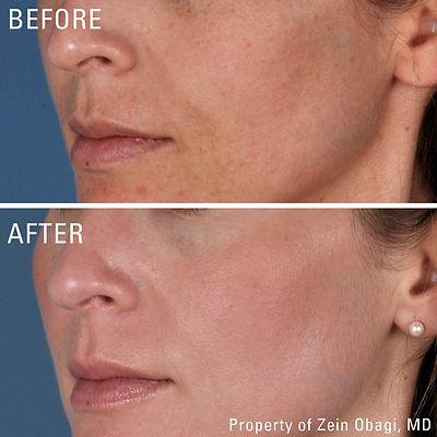 ZO Skincare near me