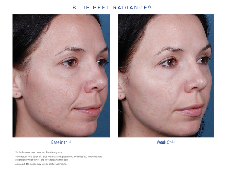 Blue Peel Radiance before and after images