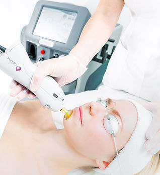 Laser+Hair+treatments+being+performed.jp