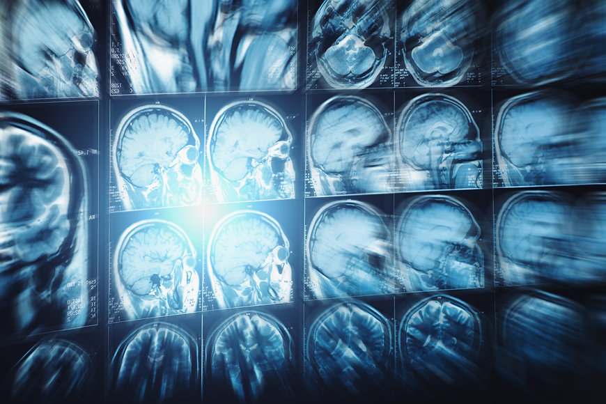 Abstract image with motion blur effect of MRI or magnetic resonance image of head or scull