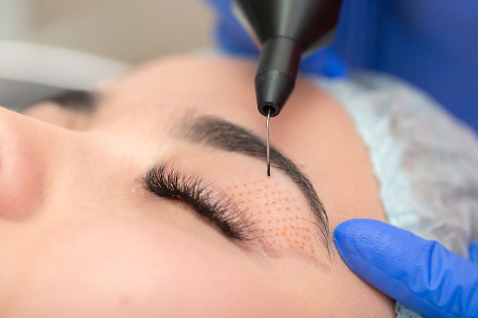 Cosmetic procedure to strengthen the skin of the eyelids. Non-surgical blepharoplasty on p