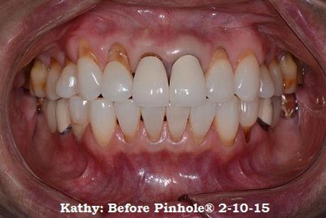 Kathy BEFORE 2-10-15.jpg
