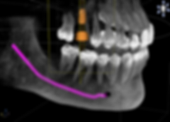 Oral-CT-Scan.png