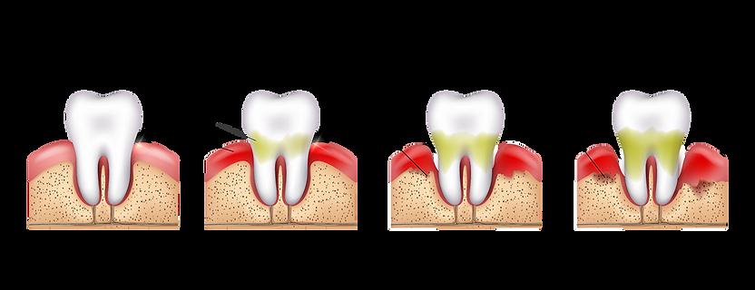 Gum Disease | Periodontitis | Gum recession
