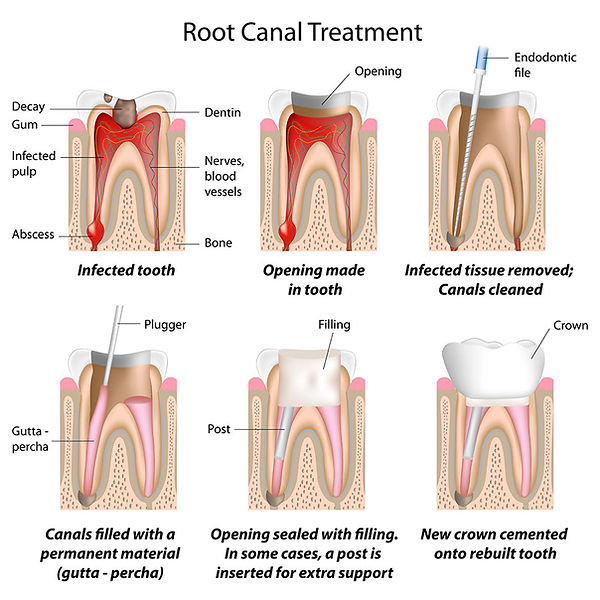 Root Canals | Phi Dental Care | Emergency dentist | Abcessed tooth