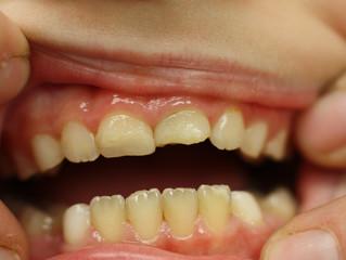 Zahnunfall - was nun?
