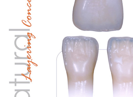 Haute couture in direct esthetic restorations